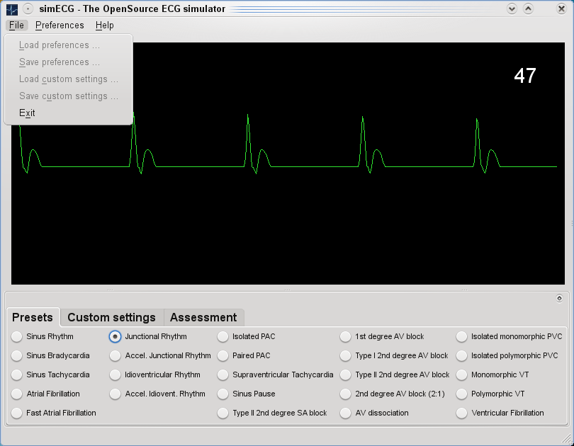 simECG - ECG simulator for training and assessment